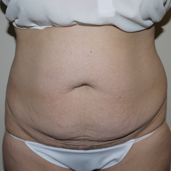 45-54 year old woman treated with Tummy Tuck before 3811819