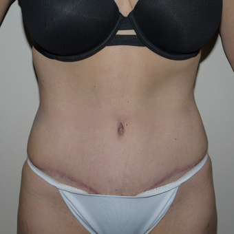 45-54 year old woman treated with Tummy Tuck after 3811819