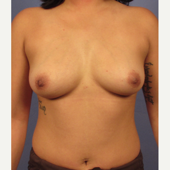 25-34 year old woman treated with Breast Augmentation before 3321585