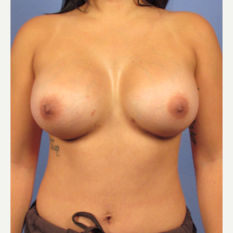 25-34 year old woman treated with Breast Augmentation after 3321585