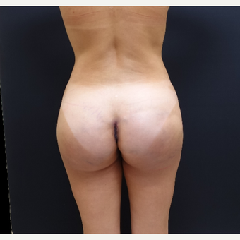 35-44 year old woman treated with 548cc Butt Implants for her Butt Lift after 3235663
