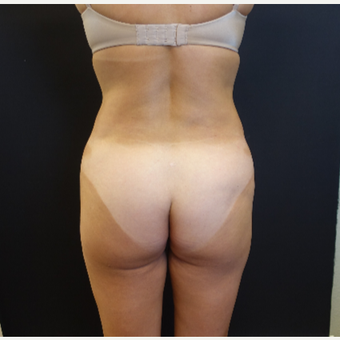 35-44 year old woman treated with 548cc Butt Implants for her Butt Lift before 3235663