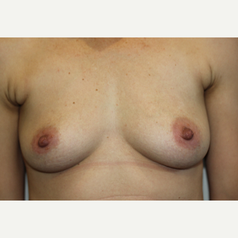 35-44 year old woman treated with Breast Augmentation before 3015281