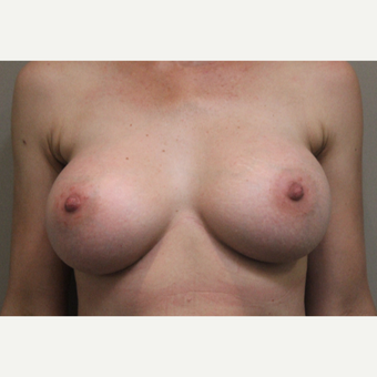 35-44 year old woman treated with Breast Augmentation after 3015281