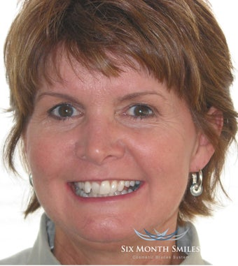 Six Month Smile/ Short term orthodontics before 490336