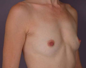 Breast Augmentation before 281427