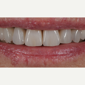 65-74 year old woman treated with Dental Crown after 3436614