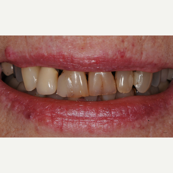 65-74 year old woman treated with Dental Crown before 3436614