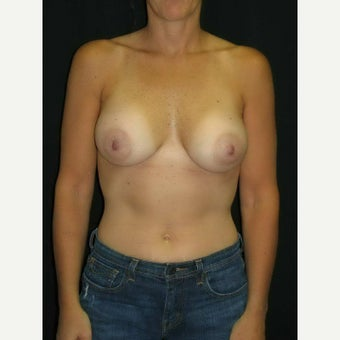 45-54 year old woman treated with Breast Implants after 1564476