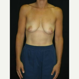 45-54 year old woman treated with Breast Implants before 1564476