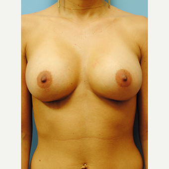 25-34 year old woman treated with Breast Augmentation after 2990297