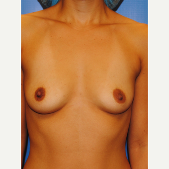 25-34 year old woman treated with Breast Augmentation before 2990297
