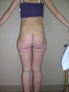 Liposuction before 1191079