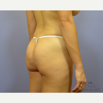 25-34 year old woman treated with Liposuction before 3421378