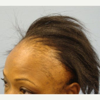 36-year-old woman after 1794 grafts before 2033581