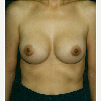 25-34 year old woman treated with Breast Implant Revision after 3300811