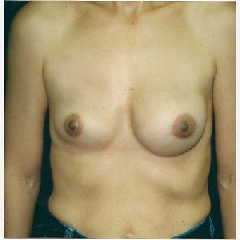 25-34 year old woman treated with Breast Implant Revision before 3300811
