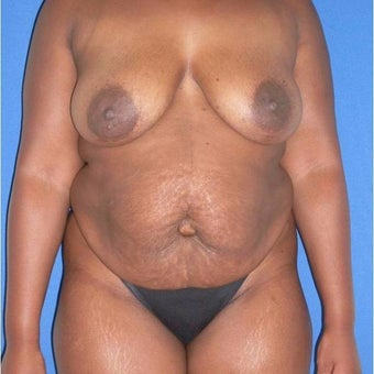 45-54 year old woman treated with Mommy Makeover before 2069826