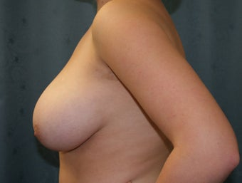 Breast Reduction 923053