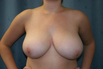 Breast Reduction before 923053