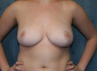 Breast Reduction after 923053