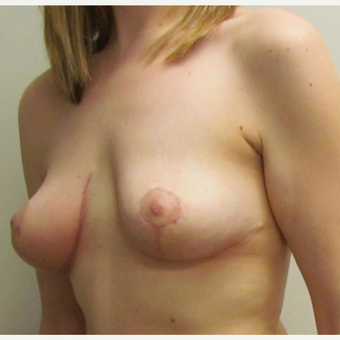 Breast Lift for this 32 Year Old Woman after 3092693