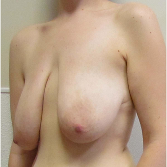 Breast Lift for this 32 Year Old Woman before 3092693