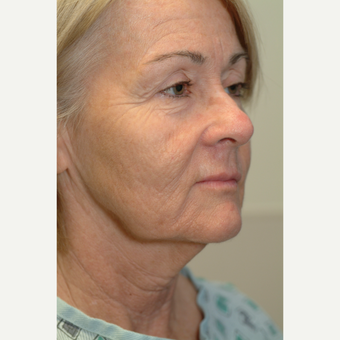 65-74 year old woman treated with Neck Lift before 3764107