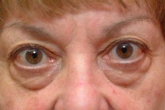 73 year old women who does not like her lower eyelid bags before 1323886