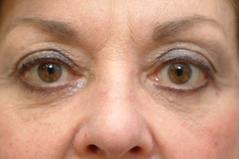 73 year old women who does not like her lower eyelid bags after 1323886