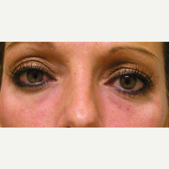 35-44 year old woman treated with Juvederm after 3372416