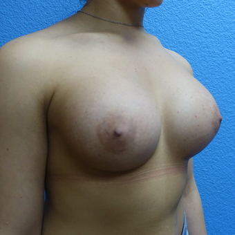 25-34 year old woman treated with Breast Augmentation after 3254653