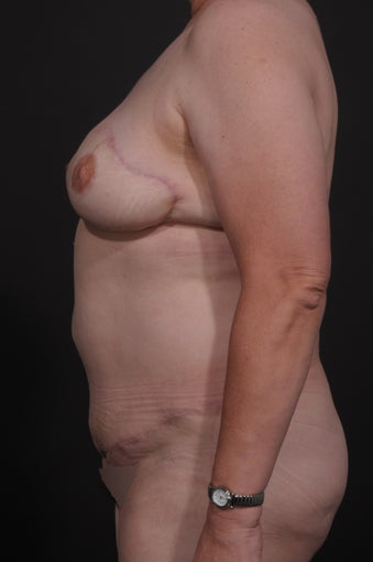 Breast Reconstruction after 927735