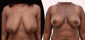 Breast reduction african american female before 1113785