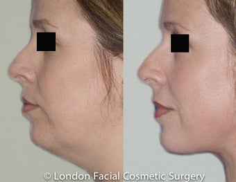 Neck lifting Case: Review Before & After Photograph before 997650
