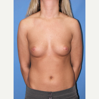 25-34 year old woman treated with Breast Augmentation before 3100374