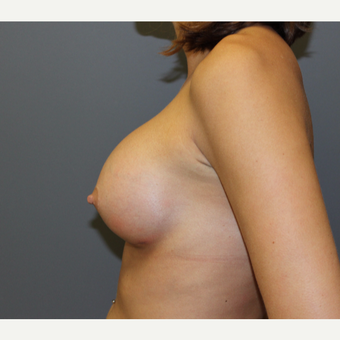 Bilateral Breast Augmentation after 3487071