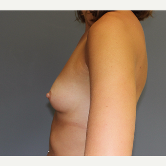 Bilateral Breast Augmentation before 3487071
