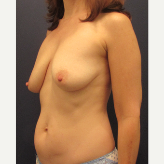 55-64 year old woman treated with Breast Lift before 3691153