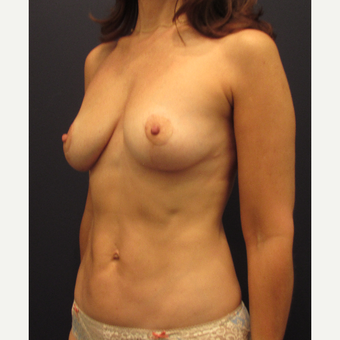 55-64 year old woman treated with Breast Lift after 3691153