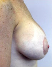 Breast Implants after 2599534