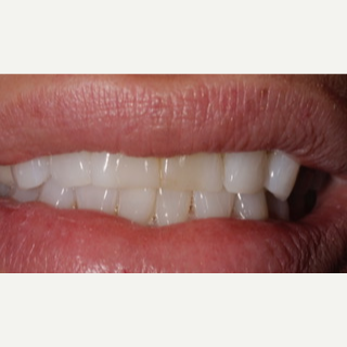 55-64 year old woman treated with Porcelain Veneers before 3488789