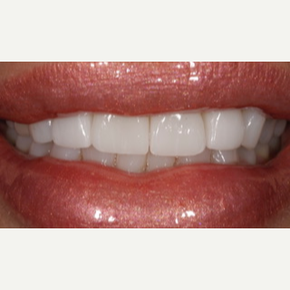 55-64 year old woman treated with Porcelain Veneers after 3488789