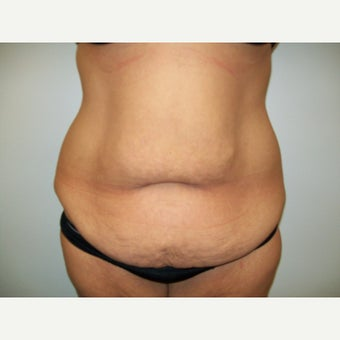 35-44 year old woman treated with Full abdominoplasty and circumferential liposuction before 2375663