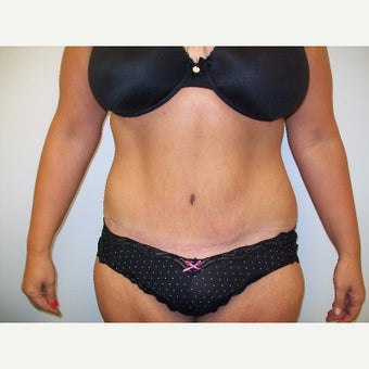 35-44 year old woman treated with Full abdominoplasty and circumferential liposuction after 2375663