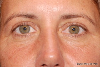 Eyelid Surgery after 1441883
