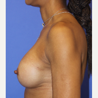 35-44 year old woman treated with Breast Augmentation after 3321751