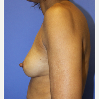 35-44 year old woman treated with Breast Augmentation before 3321751