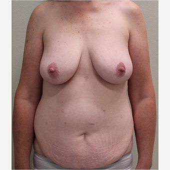 45-54 year old woman treated with Mommy Makeover before 3445809