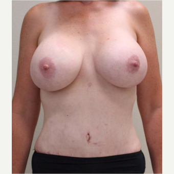 45-54 year old woman treated with Mommy Makeover after 3445809